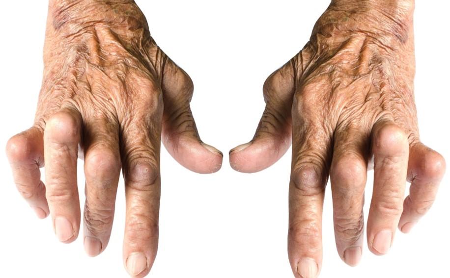 Počet pacientů s revmatoidní artritidou roste